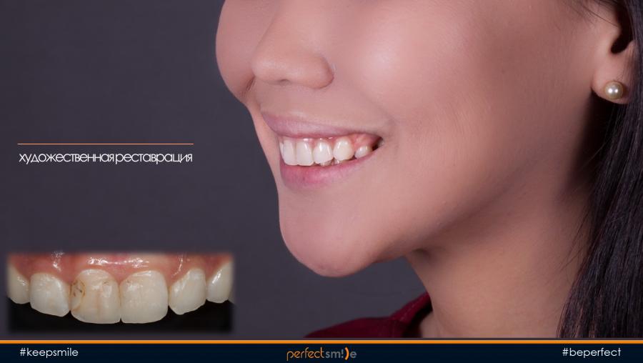 художественная реставрация зубов пломбой