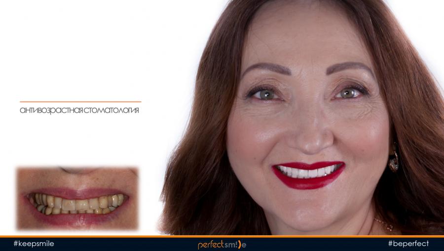 антивозрастная стоматология