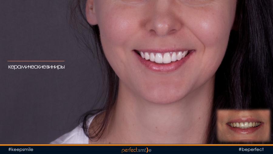 Повторное протезирование передних зубов