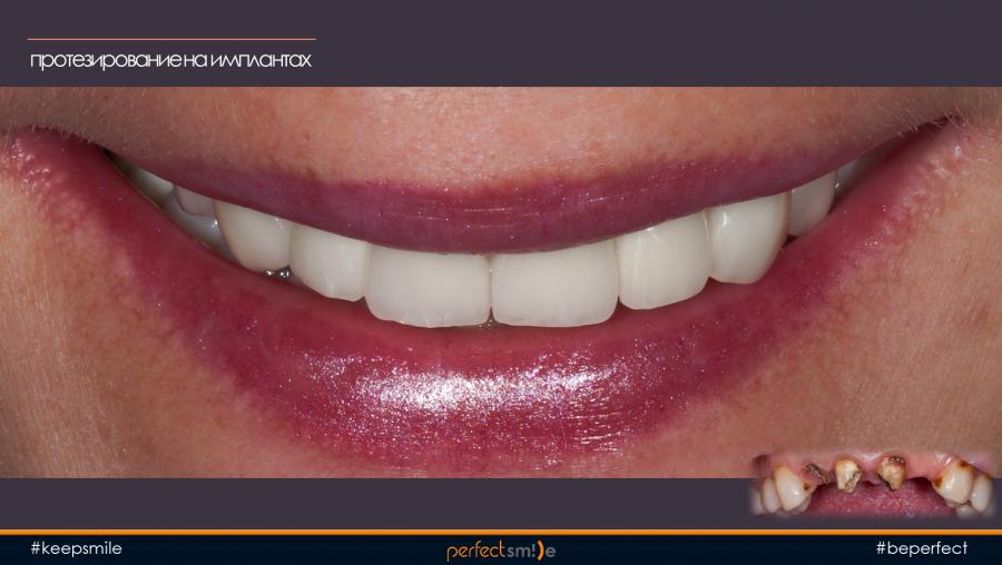 Импланты на передних зубах