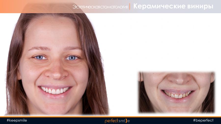 керамические виниры спб десневая улыбка