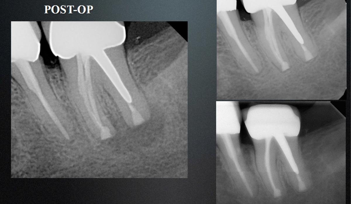 результат резекции верхушки корня зуба через 2 года
