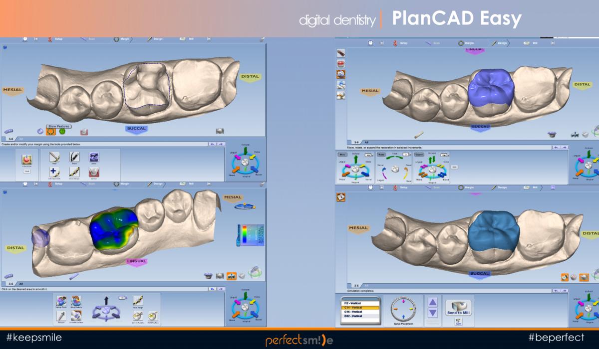 цифровая стоматология