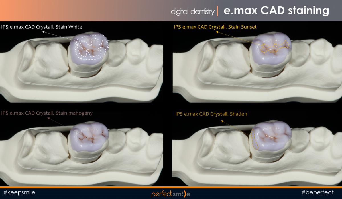 изготовление керамики емакс методом раскрашивания