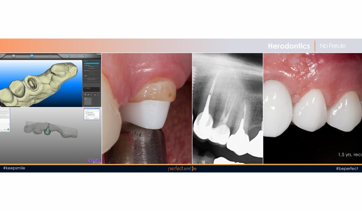 протезирование сильно разрушенных зубов