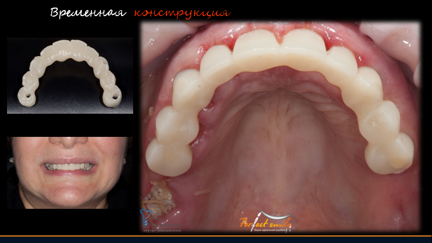 Коронка для зуба в домашних условиях 245
