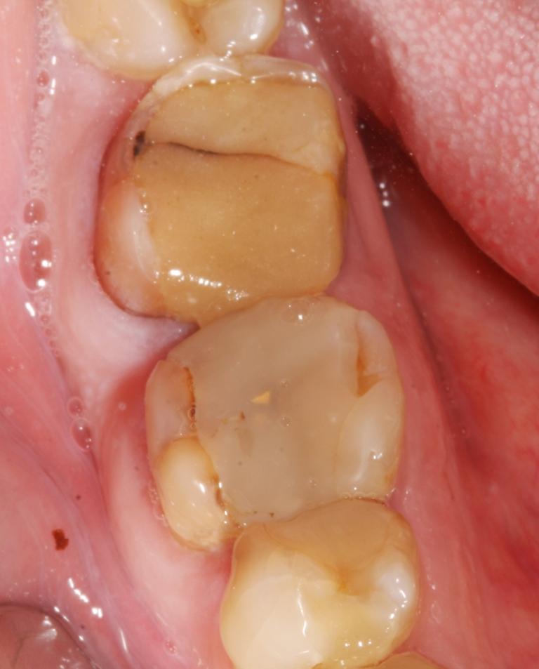 Пломба Зубная