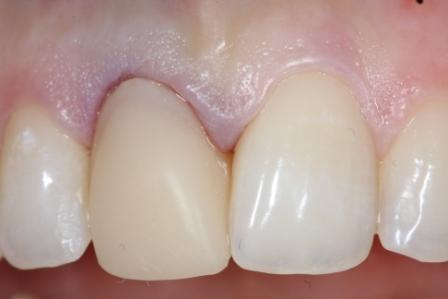 Металлопластиковые коронки на передние зубы