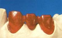 каркас зубной коронки