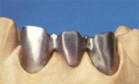 каркас зубной коронки в металле