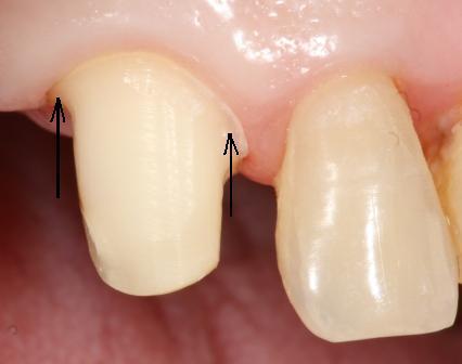 препарированный зуб