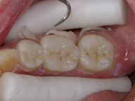 удаление цемента от зубной коронки в керамике