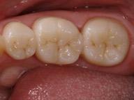 зубная коронка в керамике