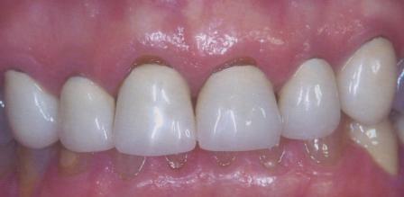 уход десны от коронки зуба