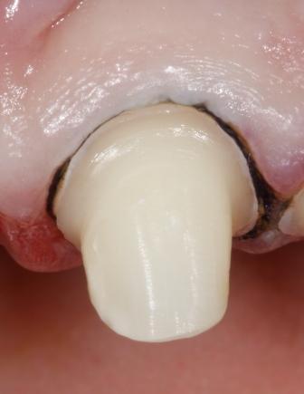 снятие слепков для изготовления коронки зуба