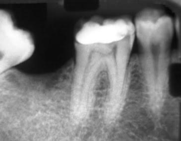 признаки пульпита на рентгене
