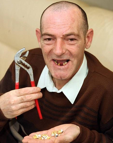 сам себе стоматолог