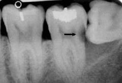 скрытая кариозная полость на рентгене