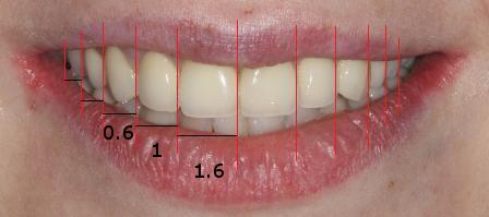 Какой должна быть длина передних зубов