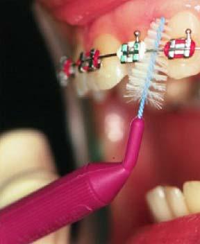 чистка зубов ершиком