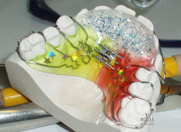 ортодонтический аппарат