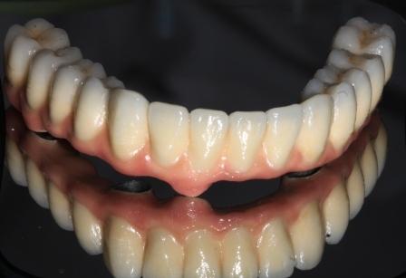 металлокерамичесий мост на имплантах при беззубой челюсти