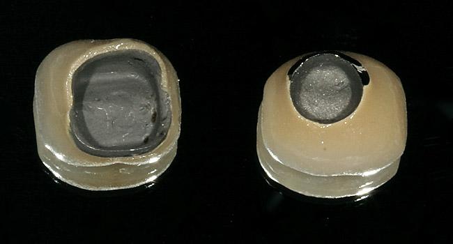 зубные коронки на импланты