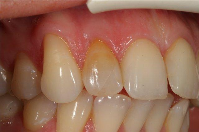 Черные ободки вокруг зубов 65