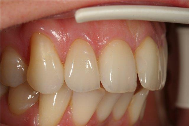 Черные ободки вокруг зубов 74