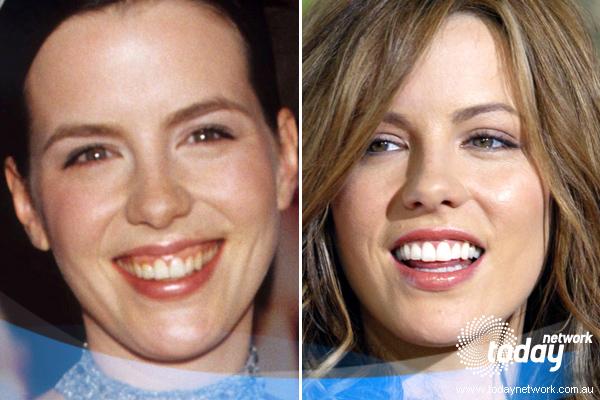 Преображения звездных улыбок. Женщины. PerfectSmile