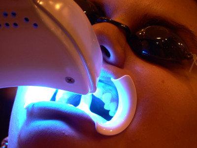 чем отбеливать зубы дома