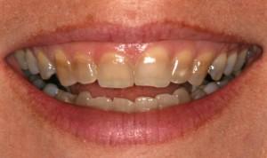 Как отбелить желтые зубы - ortobioru