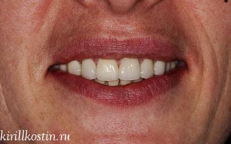 виниры на десна без зубов