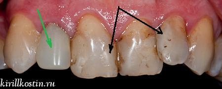 некрасивые пломбы на переднем зубе