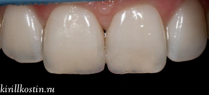 пломба на передний зуб в санкт-петербурге
