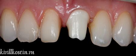 обработка зуба под керамический винир