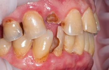 зуб сломался
