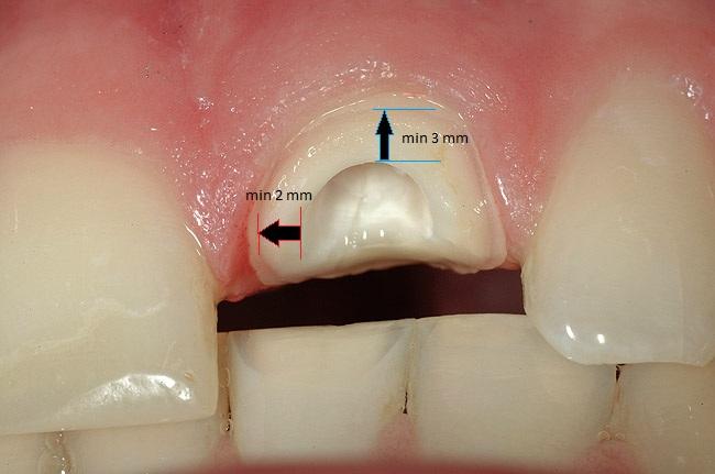 Как сделать зуб если остался только корень фото