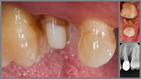 восстановление зуба на свш