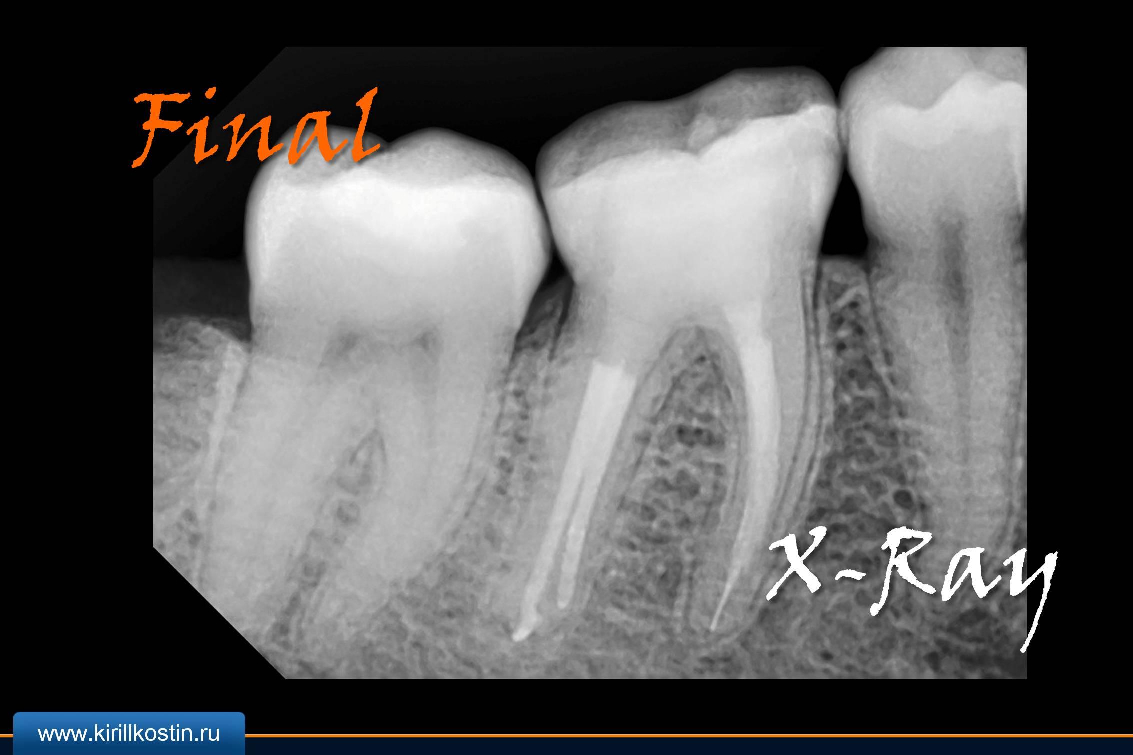 Рентген зубов 3
