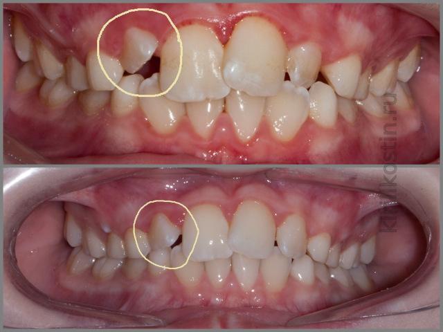 Что делать если у ребенка растет зуб а старый еще не выпал