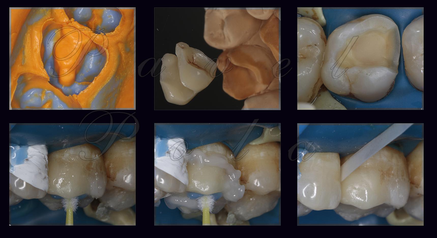 Зубная пломба на зуб в домашних условиях: как запломбировать зуб самому