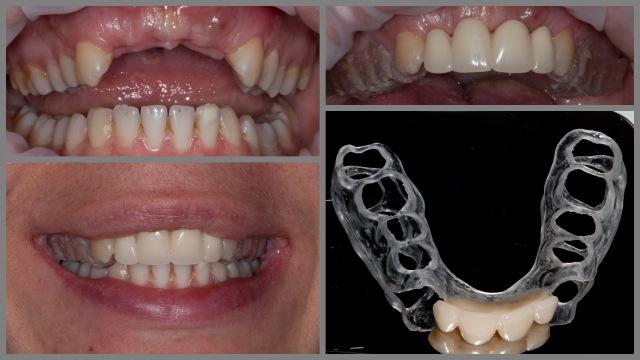 съемная каппа с зубами