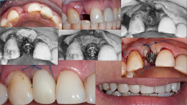 Для чего ставят временные коронки на зубы